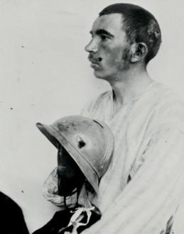 Soldat français blessé au crâne